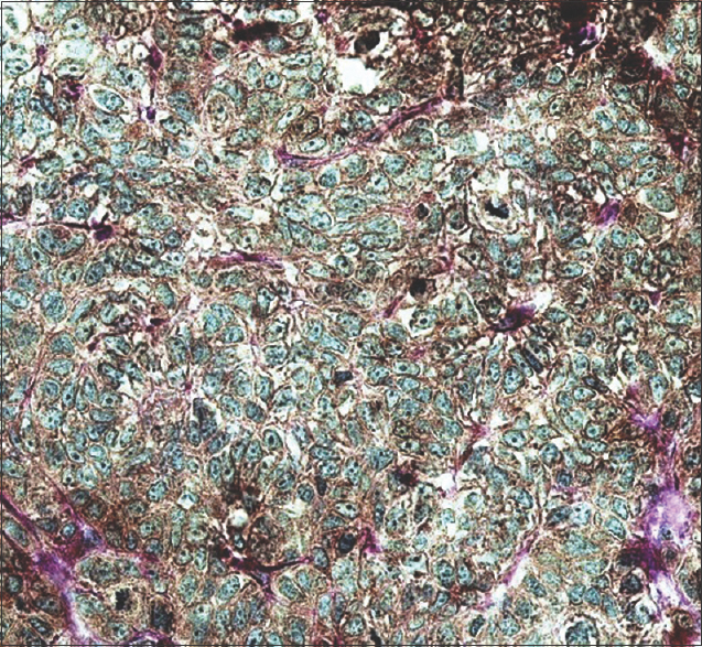 Figure 1: Histologic section of high-grade tumor. Notice moderate positive staining in tumor cells (×400)