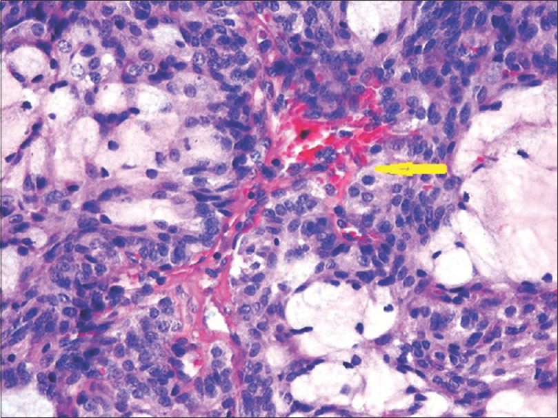 Figure 6: Close section of intermediate-grade tumor showing vascular channel lined by tumor cells (yellow arrow) (H and E)