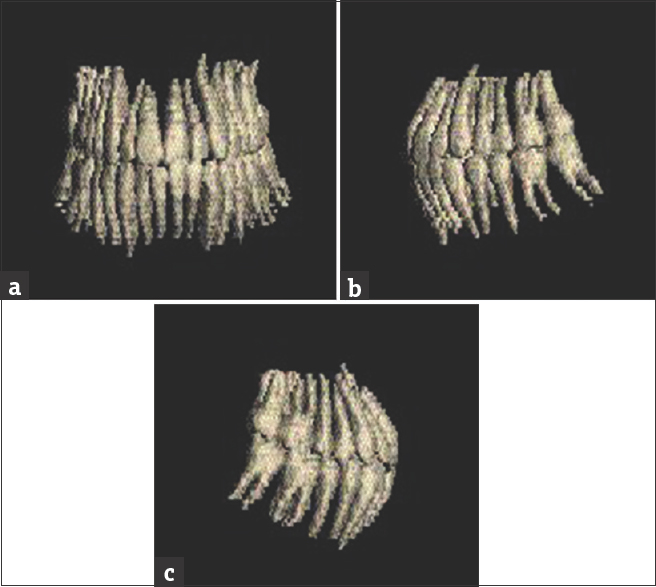 Figure 2: Teeth reconstruction: (a) Frontal view. (b) Left profile view. (c) Right profile view