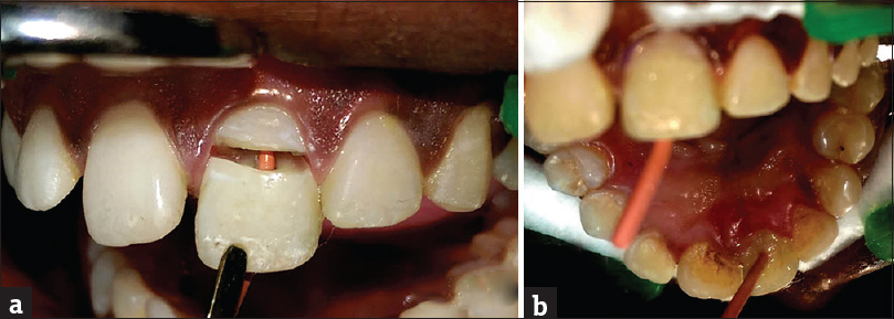 Figure 2: (a) Gutta-percha canal projector. (b) Labial and palatal view after bonding