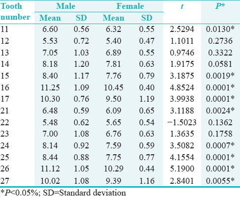 Table 3: Describes the mean, standard deviation, and <i>P</i> value of buccolingual dimensions of maxillary teeth