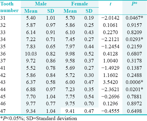 Table 4: Describes the mean, standard deviation, and P value of buccolingual dimensions of mandibular teeth