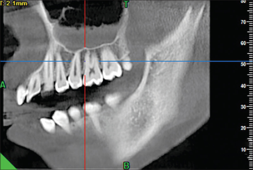 Evaluation of odontogenic maxillary sinusitis with cone beam