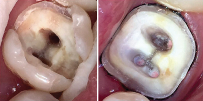 Figure 4: Before and after composite endocrown preparation