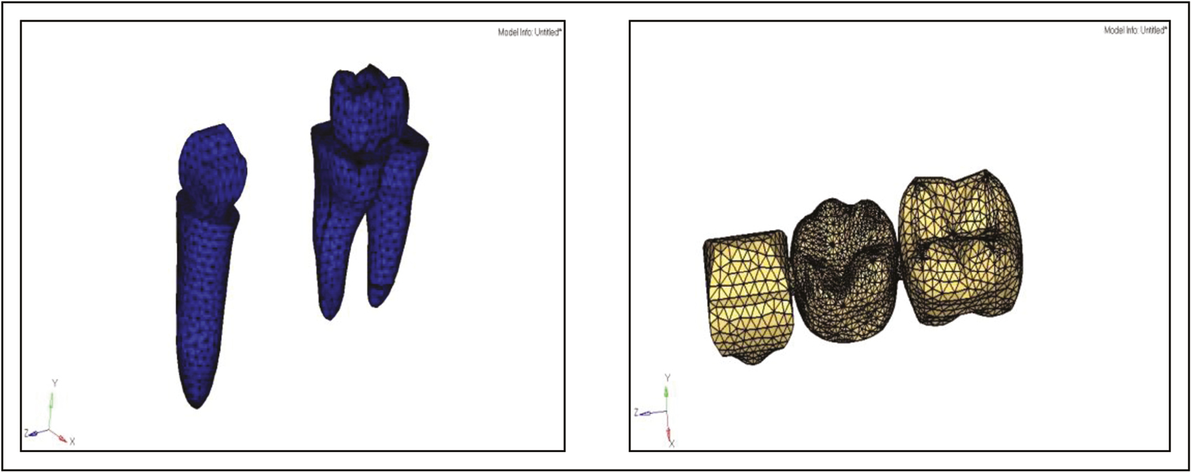 Figure 4: Modeling of abutment teeth and supra-structure