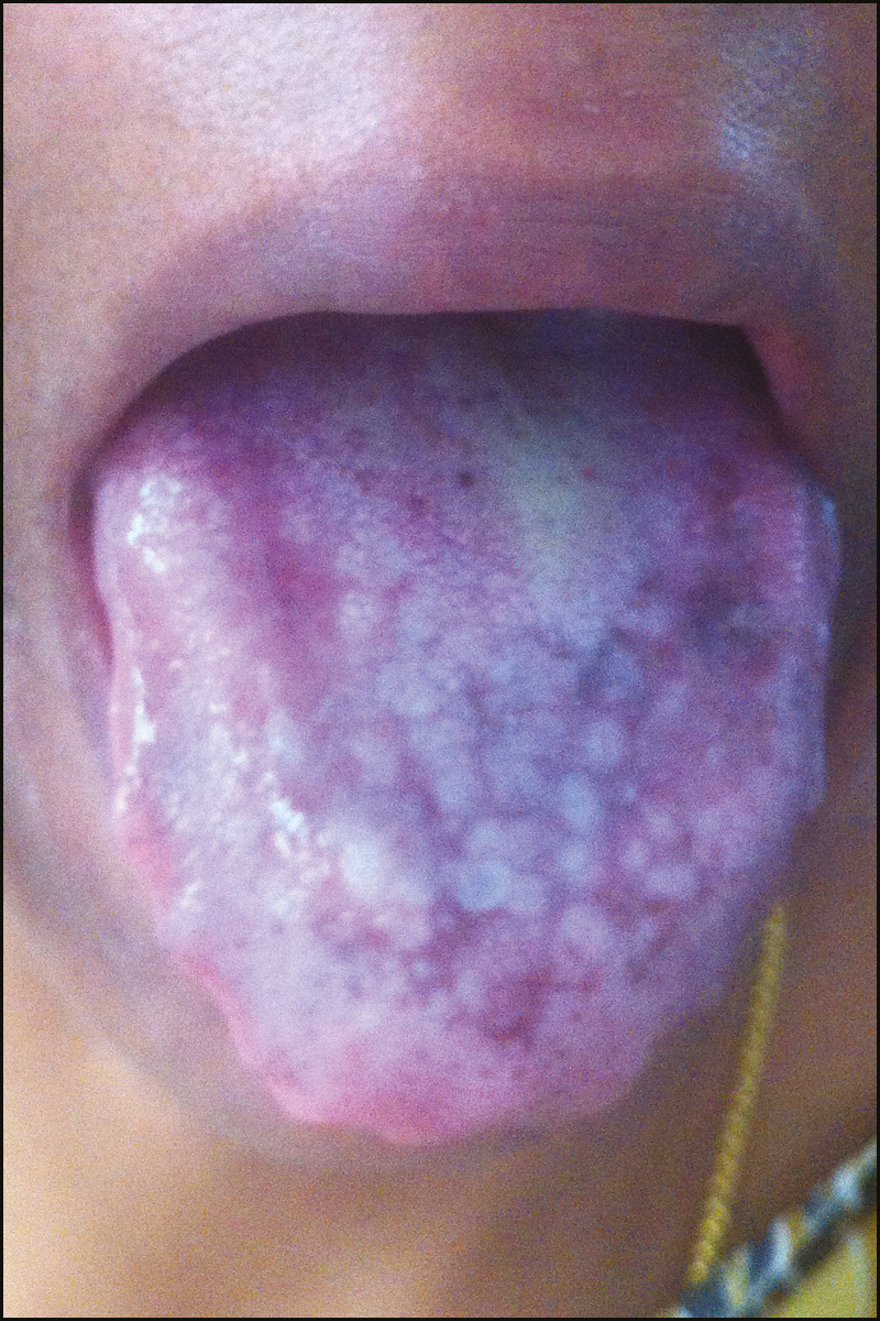 Figure 2: Pseudomembranous candidiasis characterized by curdy white plaque over the dorsum of tongue and hyperpigmentation