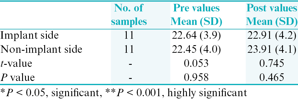 Table 3: Comparison of distances of upper first molars supported with implant and upper first molars supported with second molar during en masse retraction using unpaired <i>t</i>-test