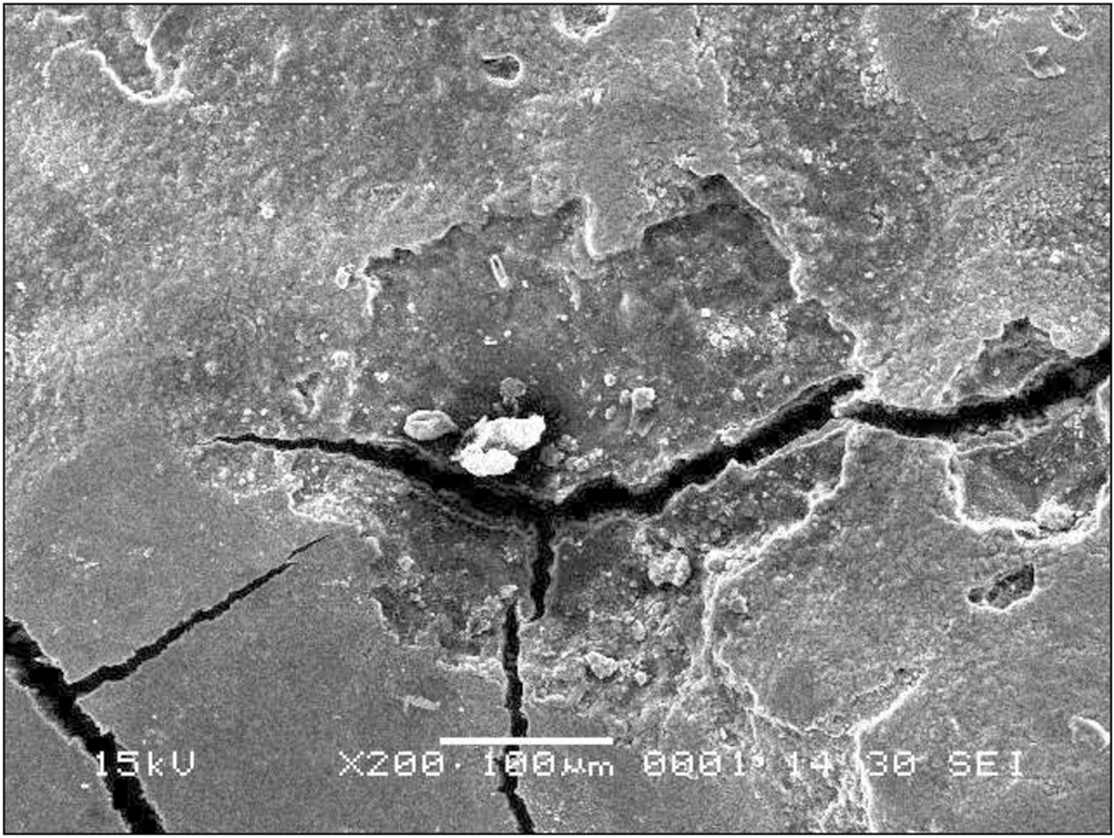 Figure 2: Irregular sharp-pointed craters Er:YAG 300 mJ at magnification ×200